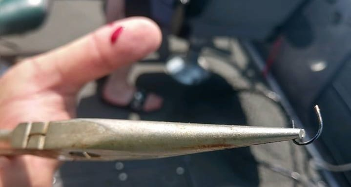 Fishing Lure Removal
